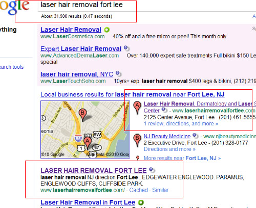 laser Hair removal Fort Lee Goorle July 2010