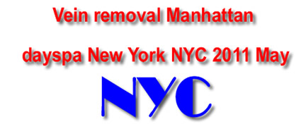 Vein removal manhattan dayspa New York NYC